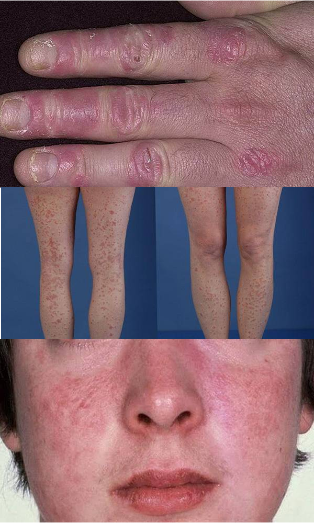 as seems to be the psoriasis on the hands feet and face