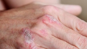 Early symptoms of psoriasis