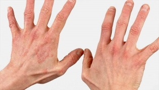 What is the initial stage of psoriasis