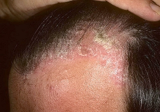 psoriasis in the head