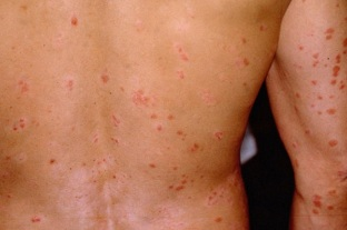 psoriasis the initial phase